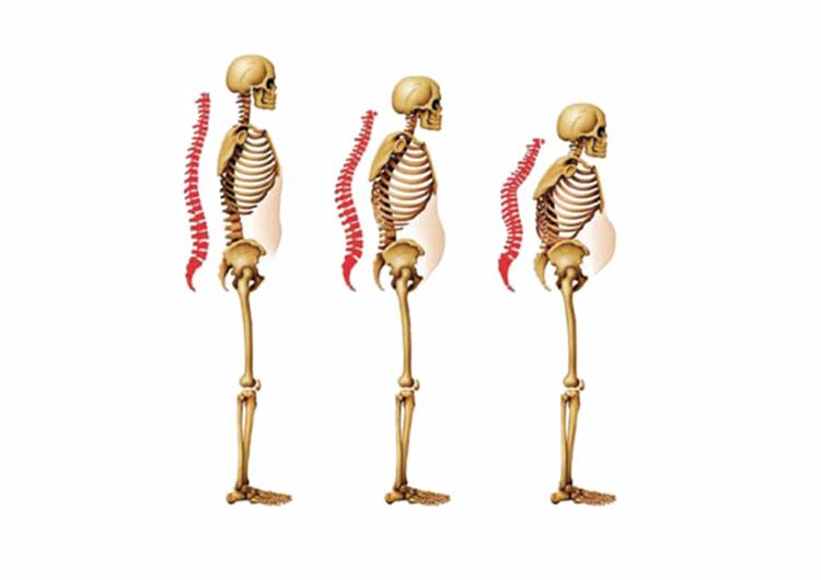 Postmenstrual-osteoporosis